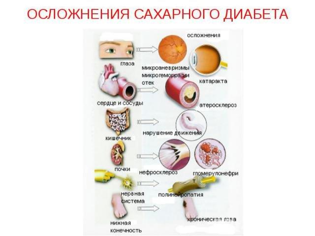 Профилактика сосудистых осложнений при сахарном диабете